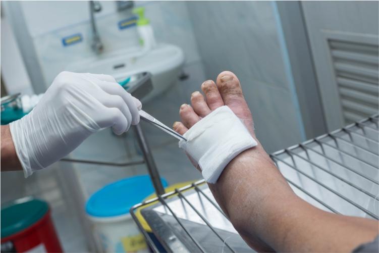 5ea962d78a98d_Diabetic_Foot.jpg