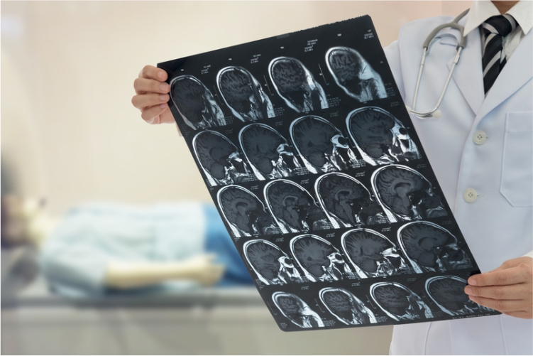 5ea968e762042_Neurology.jpg